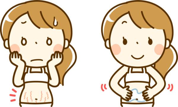 妊娠線ケア